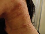 アトピー性皮膚炎治しませんか?