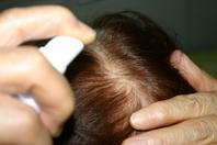 ハゲ・薄毛・抜け毛に酵素は効くのか?